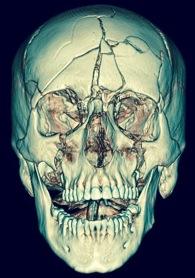 Scanner en 3D d'un patient présentant de multiples fractures du massif facial